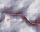 kieferorthopaede gran canaria
