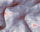 kieferorthopaede neuss