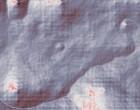 kieferorthopaedie bionator