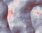 kieferorthopaedie zahnstellungskorrekturen